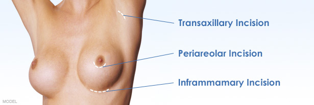 Woman's torso with markings showing the location of transaxillary, periareolar, and inframammary incision options.