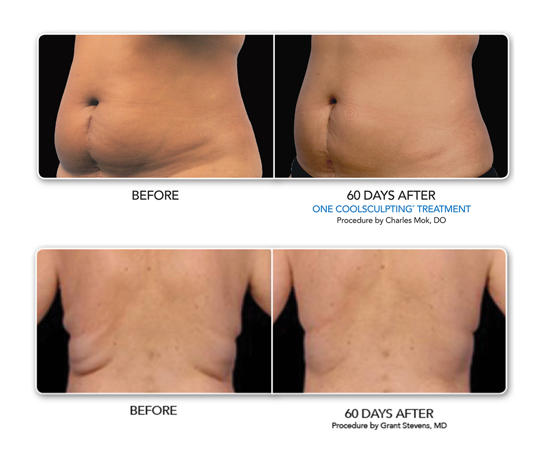 Patients shown before CoolSculpting and 60 days after treatment, revealing visibly reduced belly and back fat.