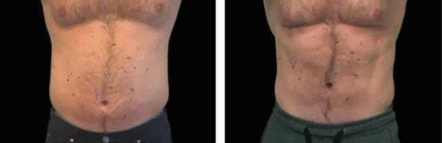 Real Man Patient Chest and Stomach Before and After Emsculpt Procedure