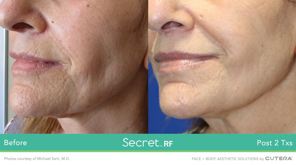 Secret™ RF Microneedling Before & After