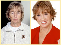 Side-by-side comparison of a 45-year-old woman before and after an extreme makeover that included a facelift and more.