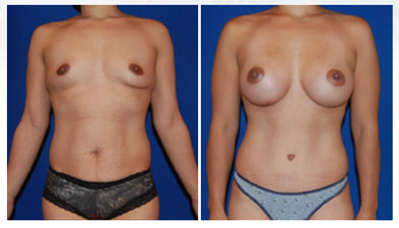 Breast augmentation in Westchester County