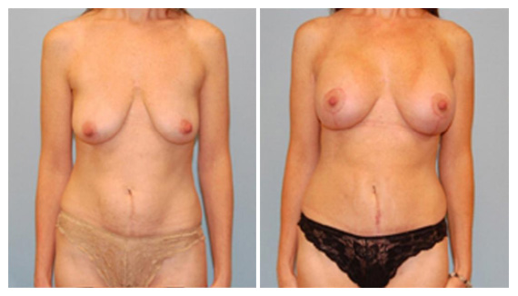 Breast implants in Westchester County
