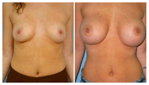 Breast enhancement in Westchester County