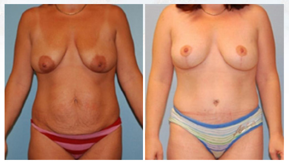 Breast lift in Westchester County