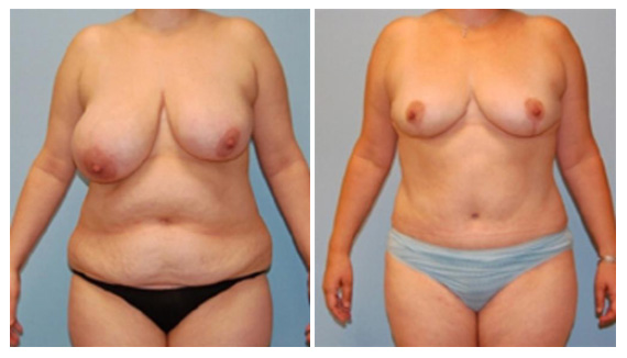 Mastopexy in Westchester County