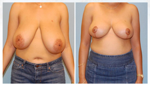 Breast reduction in Westchester County