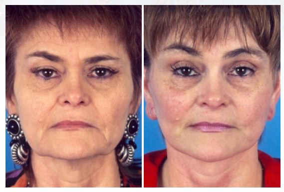 Facelift surgery in Westchester County