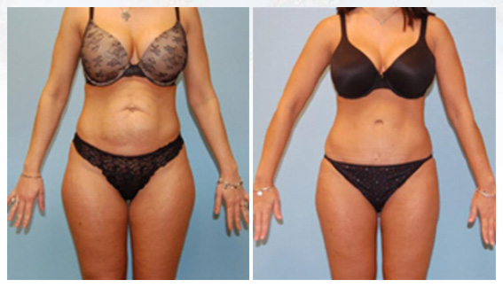 Liposuction in Westchester County