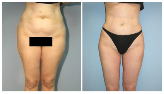 Fat removal in Westchester County